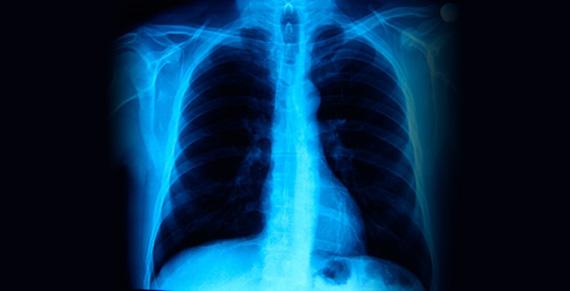 Curso Radiologia de Torax