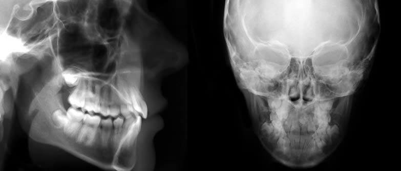 Especialista en Imagenología Dento Maxilo-Facial