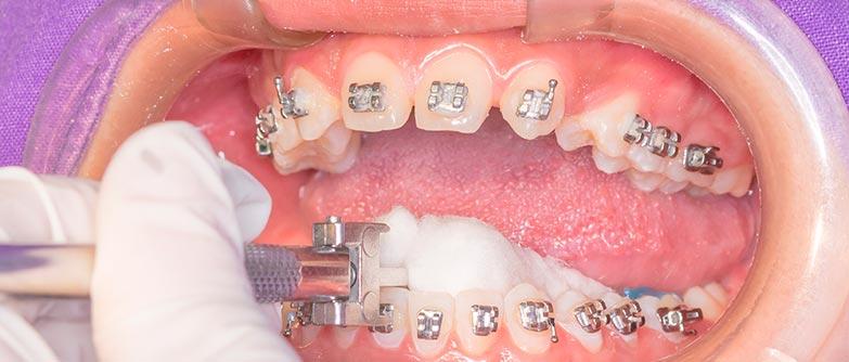 Magíster en ortodoncia y ortopedia dentomaxilar
