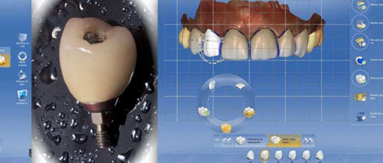Odontología CAD/CAM con sistema CEREC