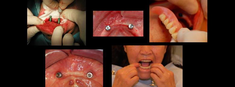 Diplomado en Odontología social del Edéntulo
