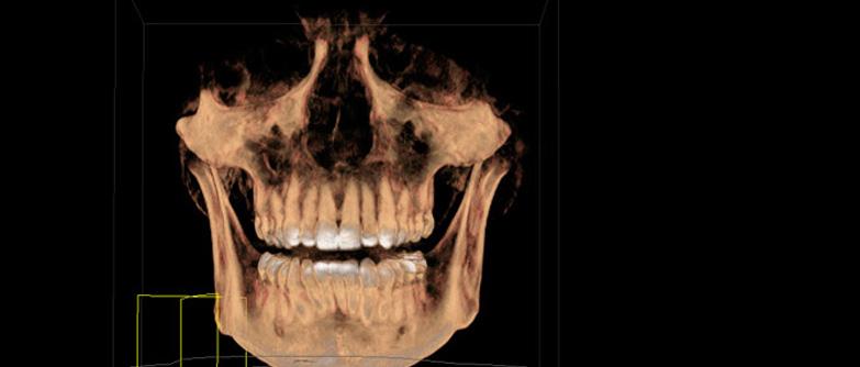 Especialista en Imagenología Oral y Maxilo-Facial