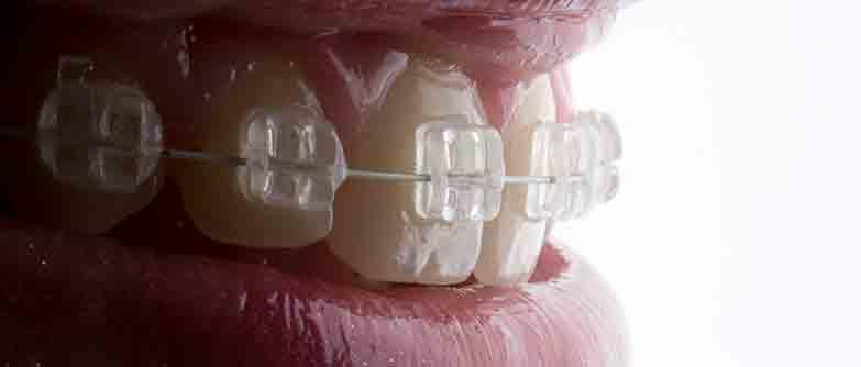Especialista en Ortodoncia y Ortopedia Dento Maxilofacial